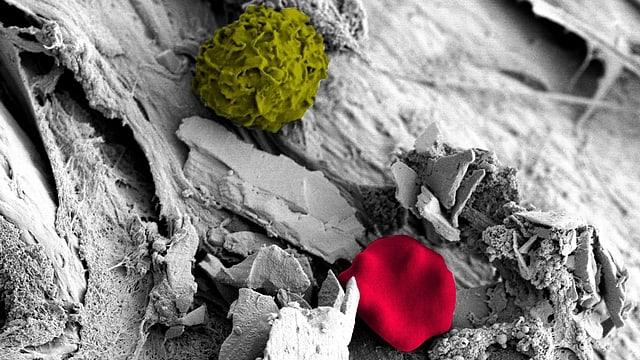 Ablagerungen auf Kathetern: Kalziumkristalle, Biofilm, Bakterien, Blutkörperchen (rot) und Immunzellen (grün).