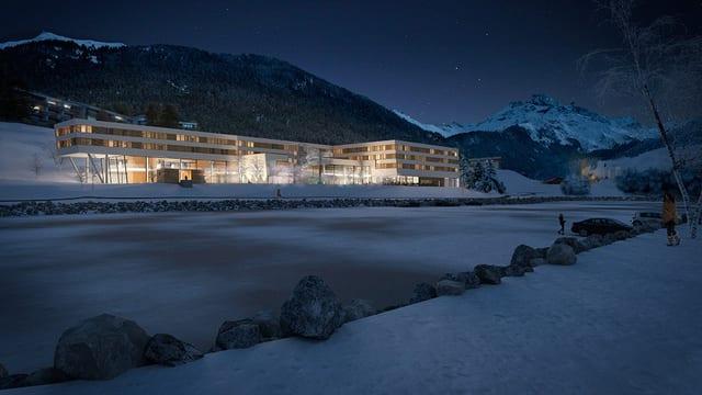 Fotomontascha project viols cun hotel e bogn al lai Barnagn.
