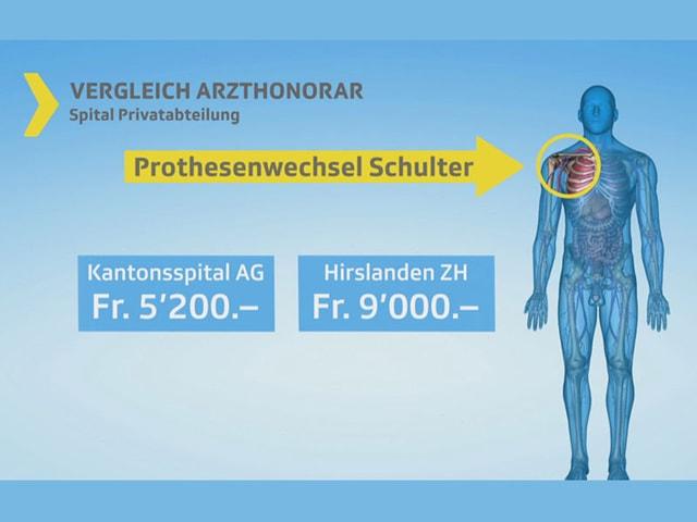 Grafik Preisvergleich Kantonsspital Hirslanden.