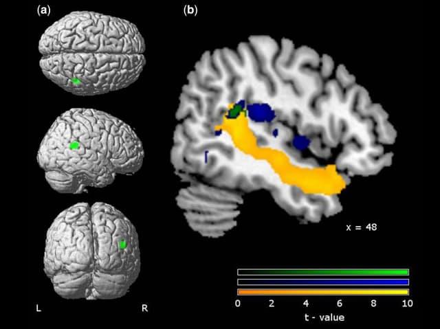 Hirnscan mit verschiedenen Perspektiven und Einfärbungen