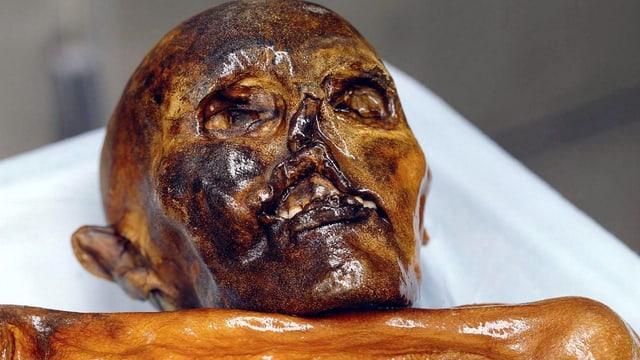 Die Mumie von «Ötzi»