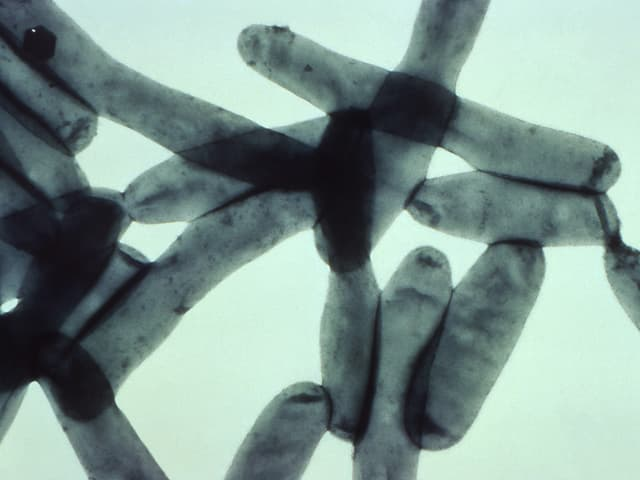 Stäbchenbakterien unterm Mikroskop