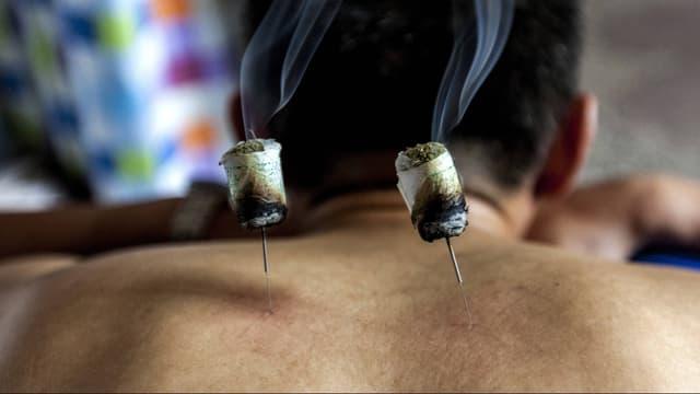 Ein auf dem Bau liegender Mann hat zwei Moxa-Nadeln in seinem Rücken stecken.