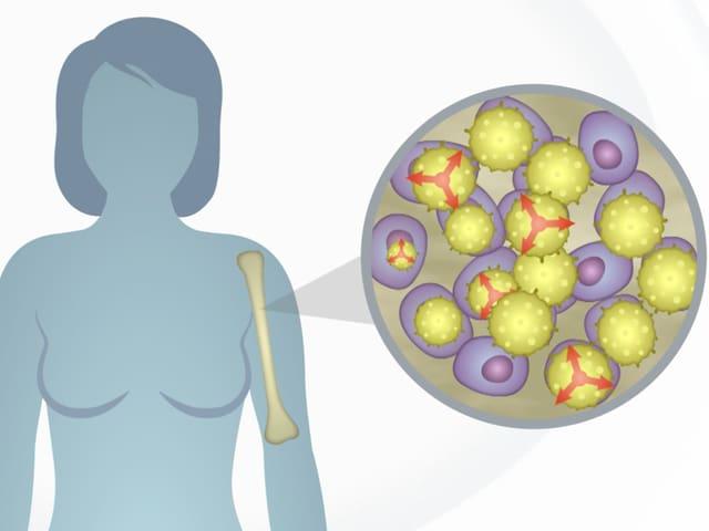 Ffrau und Abwehrzellen