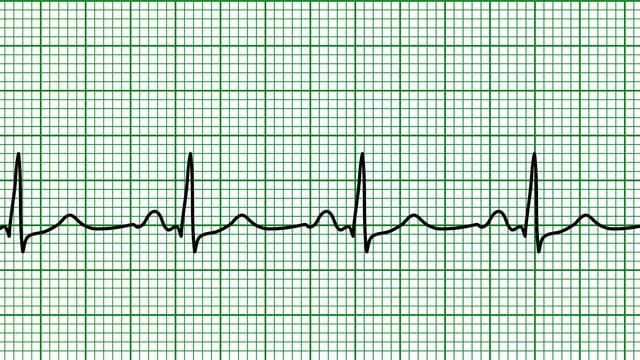 EKG eines normalen Herzschlags