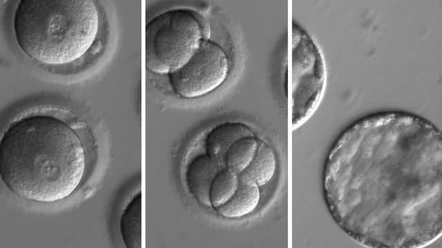 Embryo nach der Co-Injektion eines gen-korrigierenden Enzyms mit Sperma eines herzkranken Spenders.