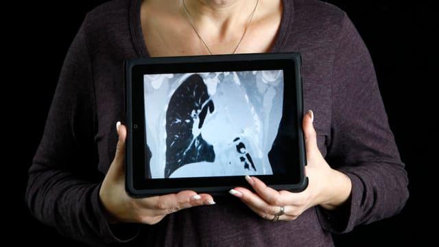 Hände halten vor dem Körper ein Tablet, darauf ein Röntgenbild mit nur einem Lungenflügel.