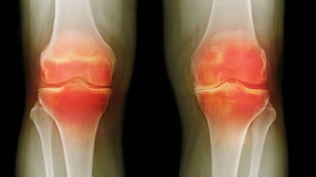 Video «Knie-Arthrose, Lichen Sclerosus, Spitalküche» abspielen