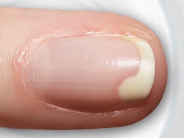 Der Nagel löst sich weisslich vom Rand her von der Fingerkuppe ab.