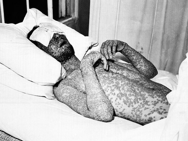 Schwarzweissaufnahme eines Mannes mit Pocken in einem Spitalbett.