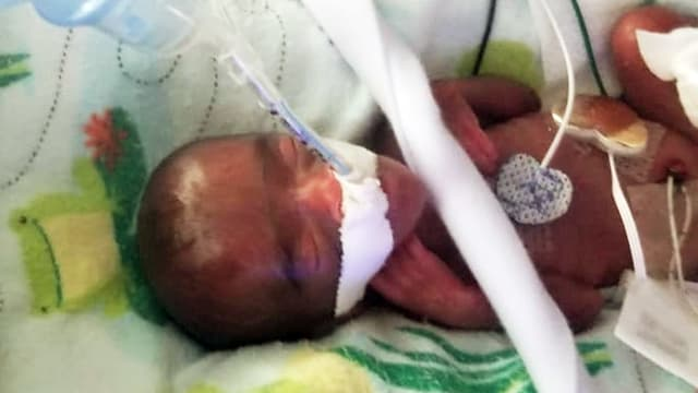 Gramm bei Geburt: Leichtestes Baby der Welt darf Krankenhaus in Kalifornien verlassen