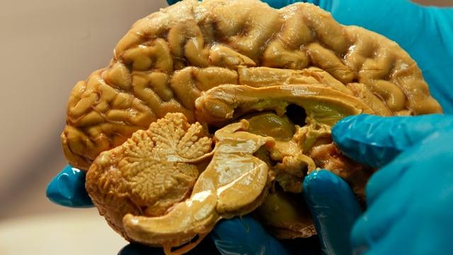 Ein menschliches Gehirn in den Händen eines Forschers.