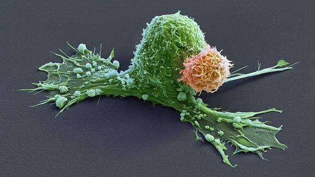 Mikroskopaufnahme einer Krebszelle und einer Immunzelle.
