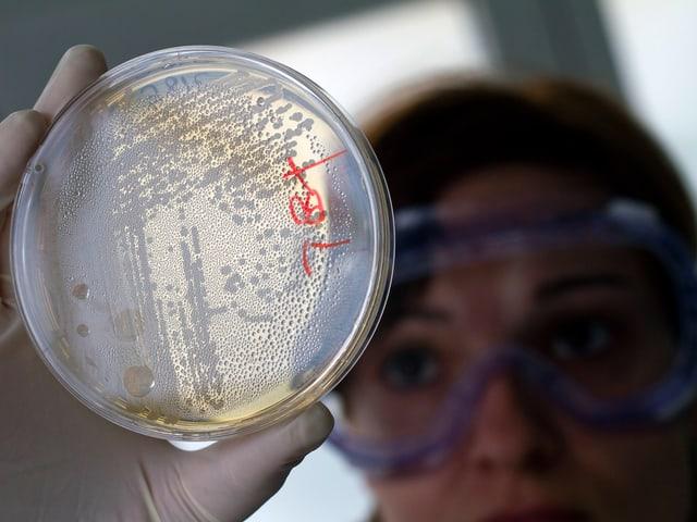 Eine Mitarbeiterin eines Labors schaut auf eine Probe mit Bakterienkulturen.