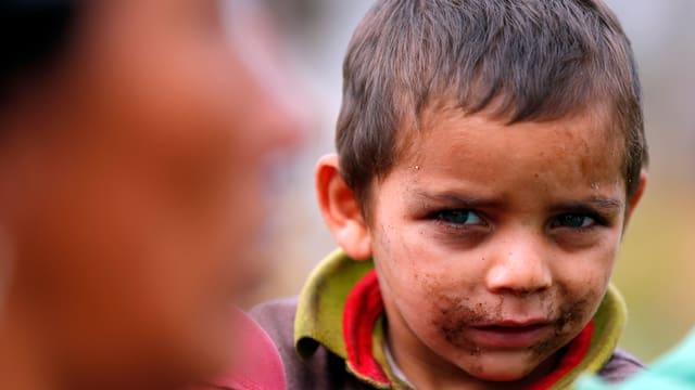Ein Kind mit schmutzigem Gesicht blickt skeptisch in die Kamera.