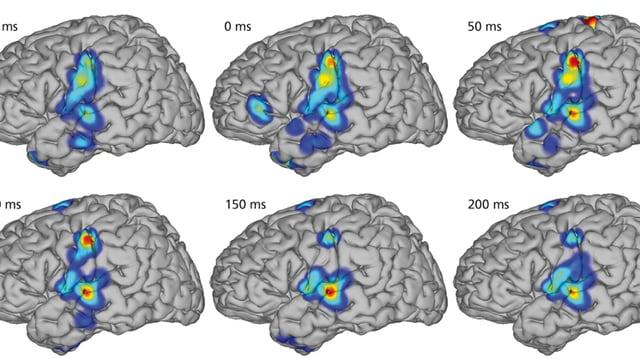 Ein Modell zeigt die Aktivität im Gehirn beim Sprechen