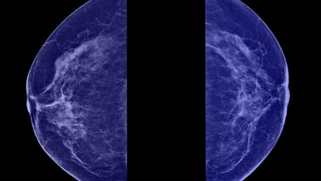Brustkrebs MRI