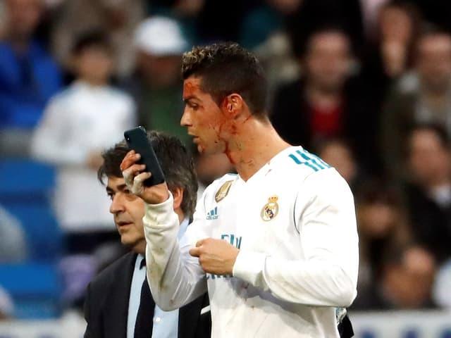 Der blutüberströmte Ronaldo benutzt ein Smartphone, um das Ausmass seiner Verletzung zu überprüfen.