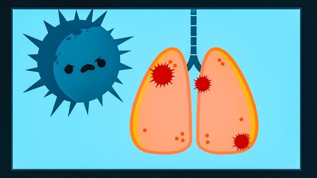 Zu sehen ist eine gezeichnete Lunge und ein gezeichneter Virus.