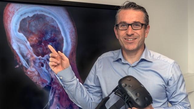 Ein Mann zeigt auf ein CT-Bild