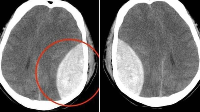 Fact Checking: Beispiel «Röntgenaufnahme»