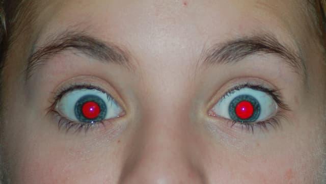 Knabe mit roten Augen