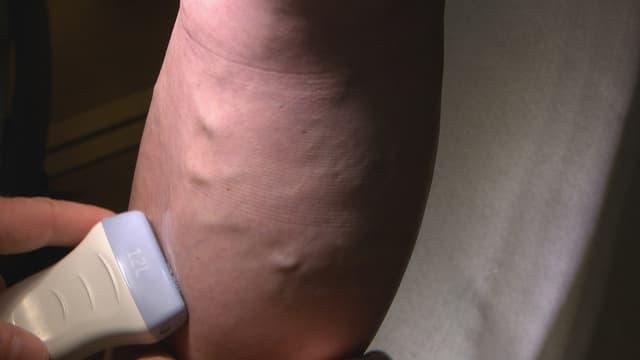 Video «Krampfadern, Malariaschutz, Laufschuhe» abspielen