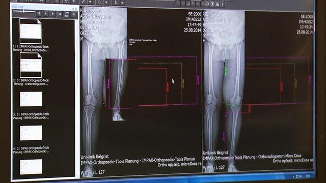 Vergleichende Röntgenaufnahme vor und nach deer Beinamputation.