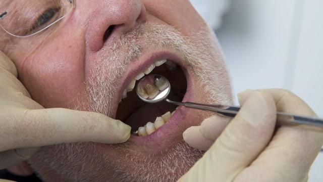 Zahnarztspiegel in Mund von Mann mit weissem Bart.