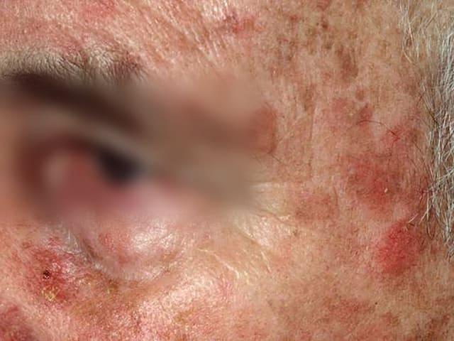 Nahaufnahme von Hautkrebs