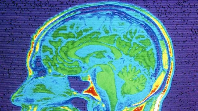 MRT-Bild eines menschlichen Gehirns