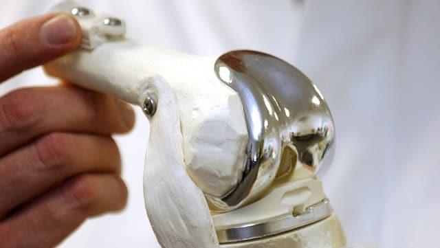 Ein künstliches Kniegelenk in den Händen eines Arztes.