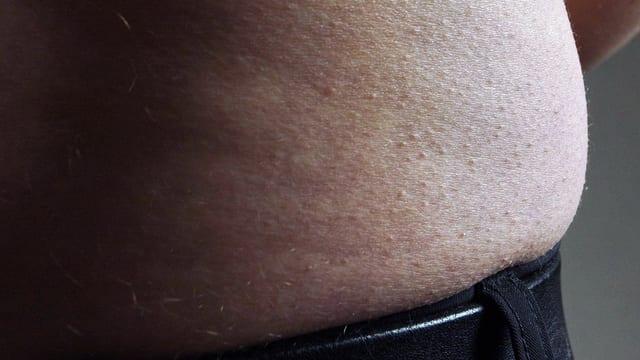 Hüftspeck quillt über den Hosenbund