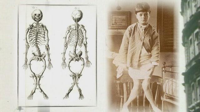 Kind mit extremen X-Beinen, daneben eine Zeichnung des verformten Skeletts