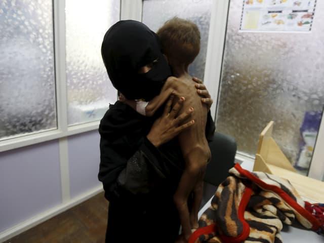 Frau hält unterernährtes Kind.