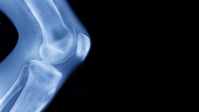 Ein Röntgenbild von einem Knie.
