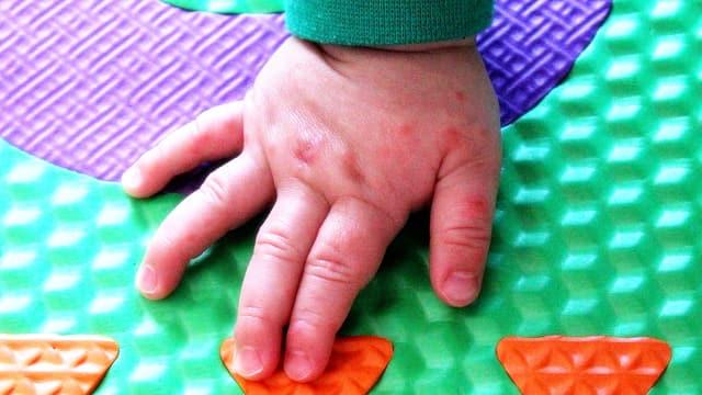 Hand Fuß Mund Krankheit Spielzeug Desinfizieren