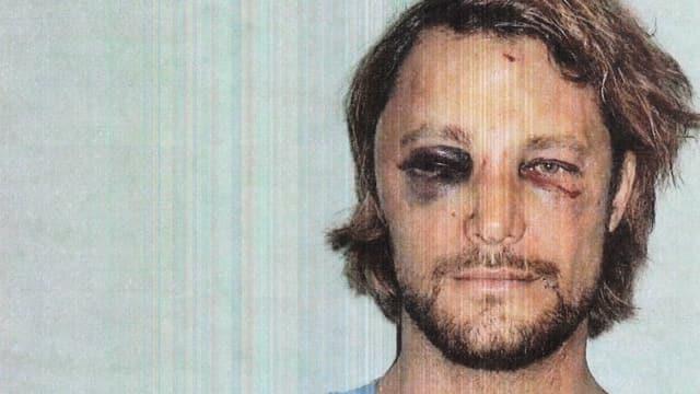 Ein Mann mit blaubem Auge und Kratzer im Gesicht.