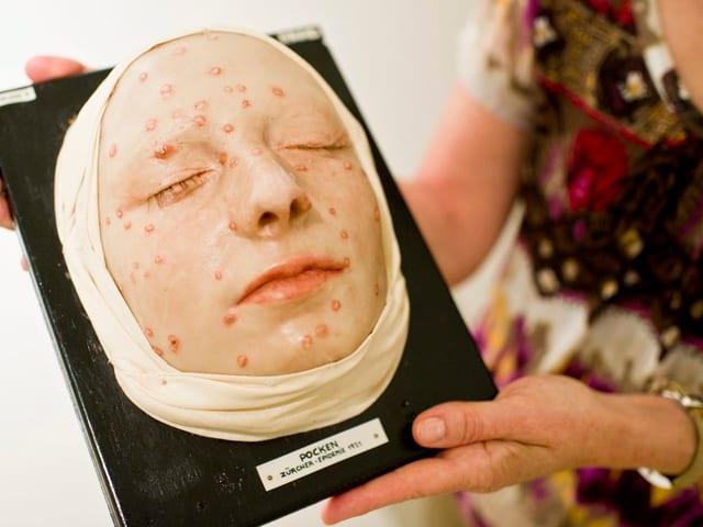 Ein medizinisches Modell eines Gesichtes mit dem typischen Hautausschlag durch Pockenviren. Gezeigt wurde das Ausstellungsstück in St. Gallen.