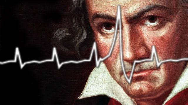 Portrait von Ludwig van Beethoven mit EKG-Kurve einer Herzrhythmusstörung