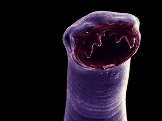 Mikroskopaufnahme eines Hakenwurms