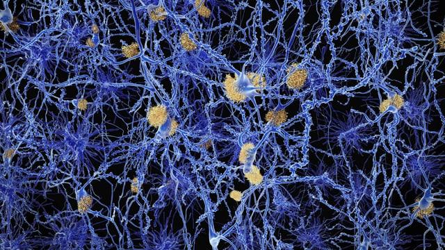 Grafische Darstellung von Plaques im Gehirn