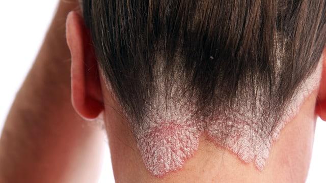 Person mit Schuppenflechte am Haaransatz ium Nackenbereich.