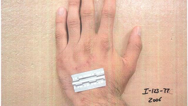 Hand mit kleiner Wunde und Zentimetermassstab