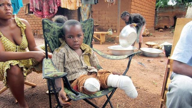 Ein kleiner Junge sitzt auf einem Stuhl. Er hat beide Beine verloren.