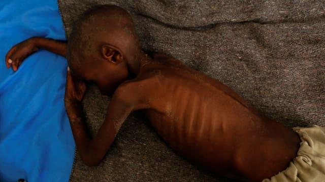 Ein bis auf die Rippen abgemagertes, vierjähriges Kind liegt auf einer Wolldecke.