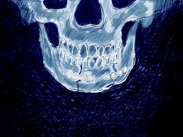 Die Illustration zeigt eine Röntgenaufnahme eines gebrochenen Kiefers.