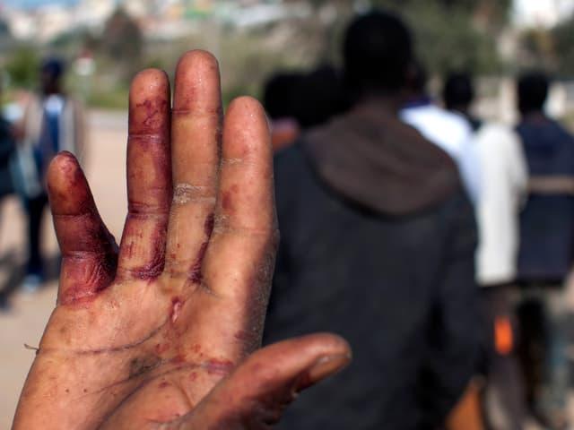 Schnittverletzung an einer Hand