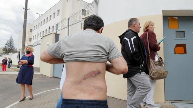Mann mit verwundetem Rücken, Minsk 10.08.2020