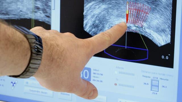 Prostatakrebs: Abwarten oder radikal handeln?